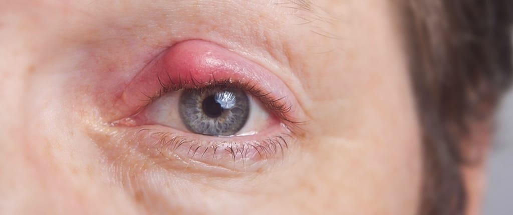 Blepharitis: Inflammation of the eyelids - Posiforlid
